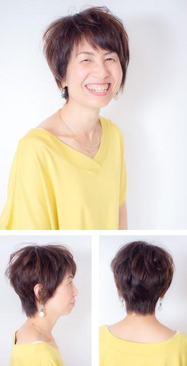 鈴木 光子様(40代)